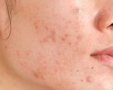 Do Acne Scar Treatments Actually Work? By Dr. Dorota Gribbin