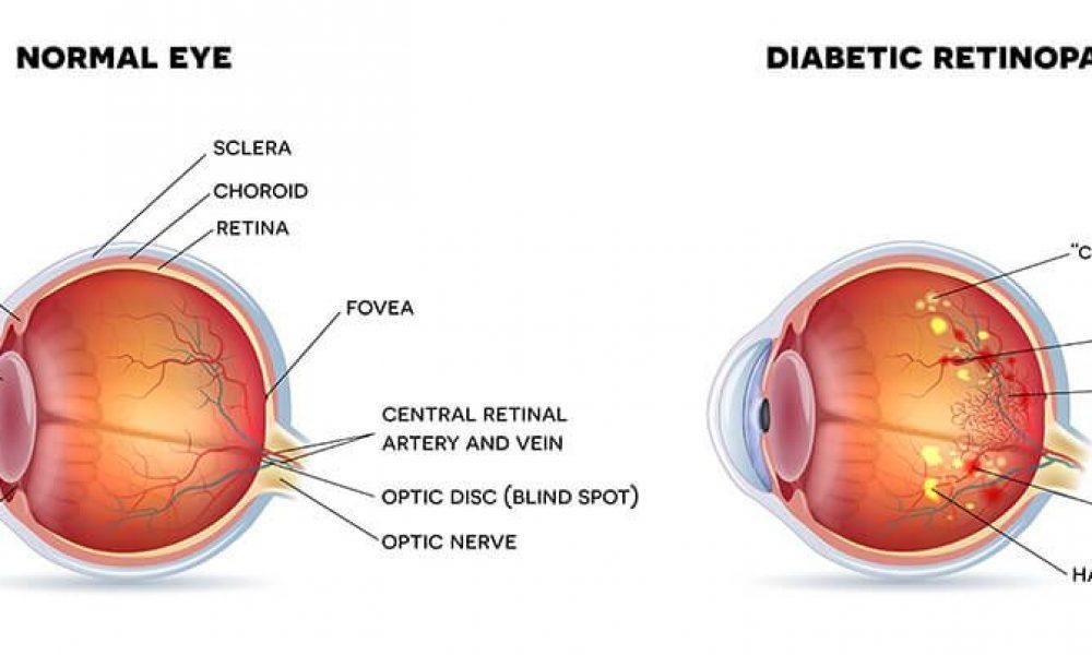 Diabetes Eye Disease — Dr. Gioia's thoughts