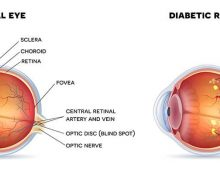 Diabetes Eye Disease — Dr. Gioia's thoughts