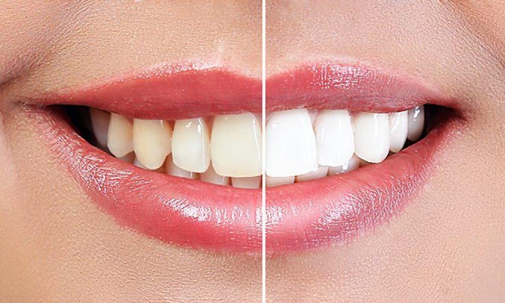 Restorative Dentistry for Dental Health