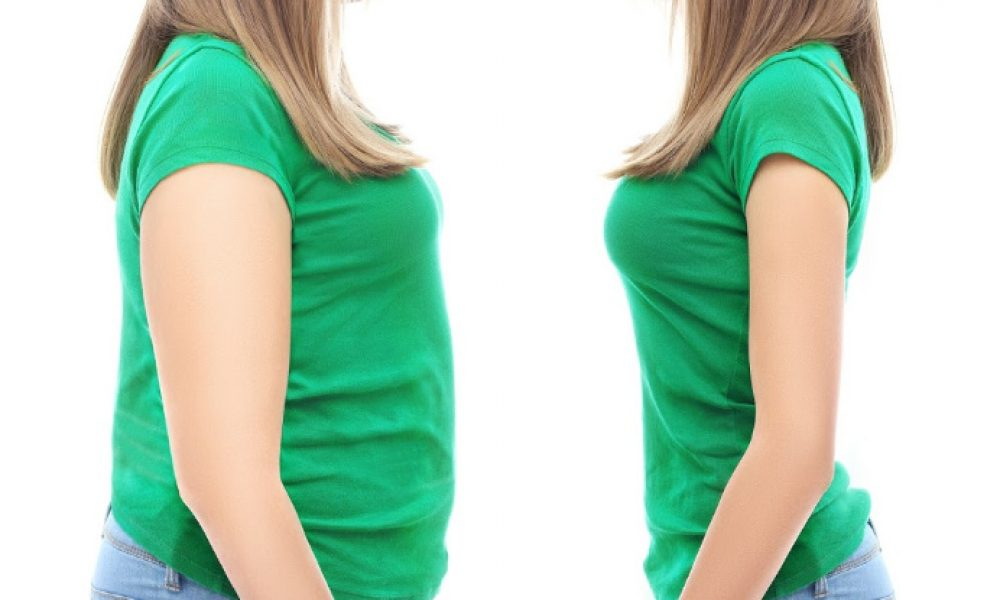 You and Your Health Bariatric Surgery