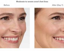 Is Botox Right For You?