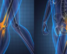 Knee And Hip Replacement