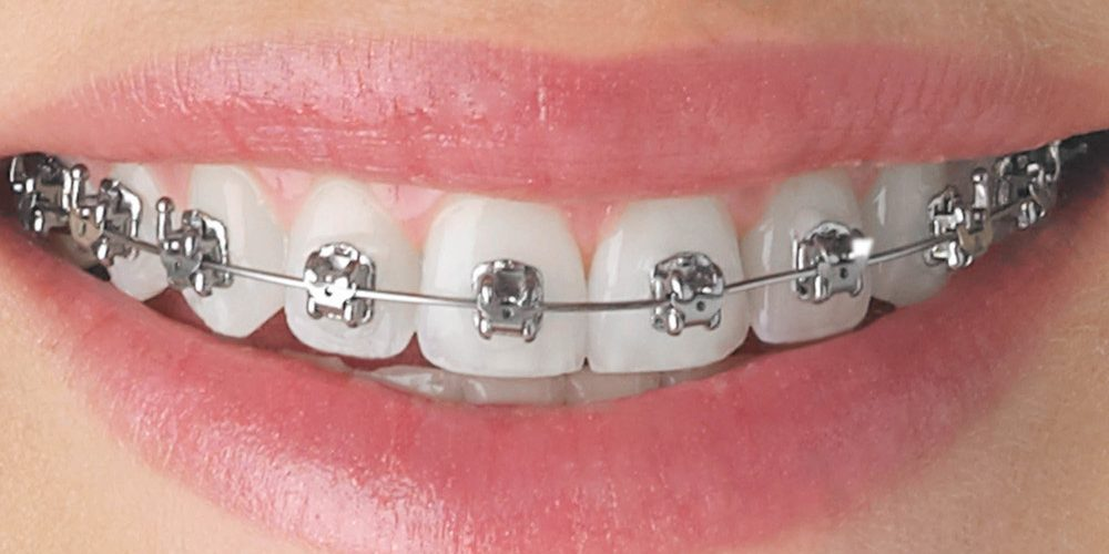 Braces Tips By Dr. Sezer Olcay
