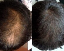There are Many Possible Reasons for Hair Loss