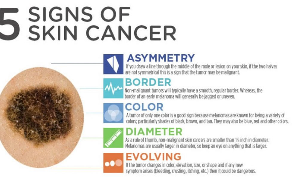 Don't let the summer sun blind you to this lesser-known skin cancer