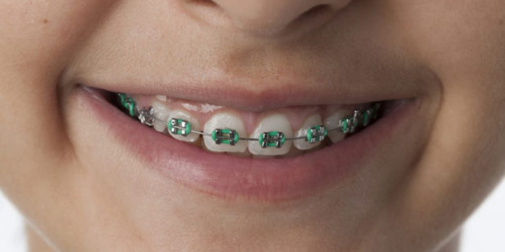 What Is Phase 1 Orthodontic Treatment