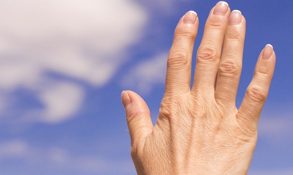 Rehabilitation for Arthritis Management