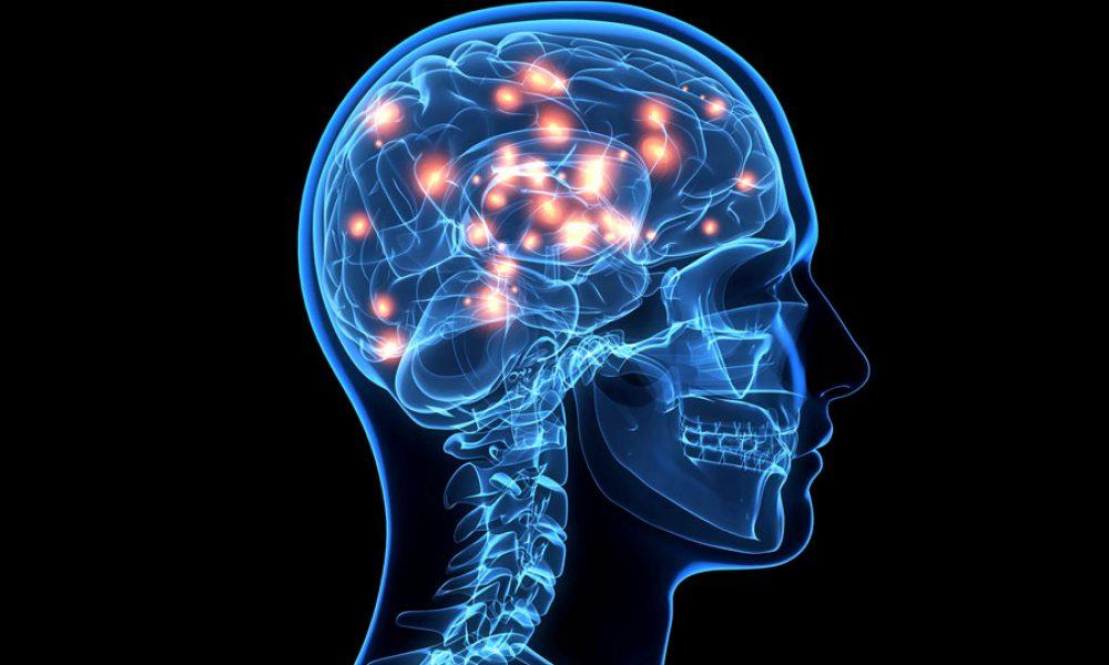 Neurological Disorders: Complex Diseases that Require a Team Approach Tinton Falls NJ