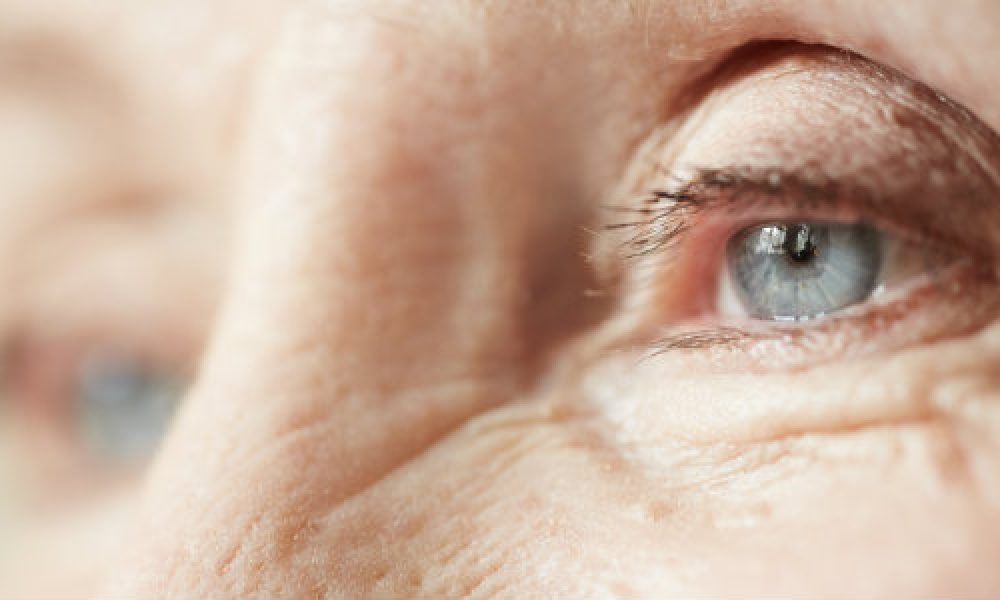 Clearing Up Cataract Questions By Beyer Eye Associates