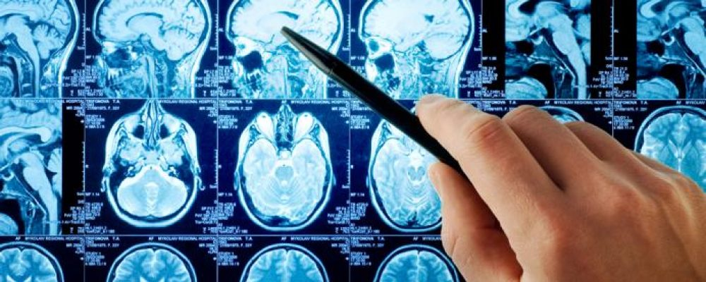Neurological Disorders: Complex Diseases that Require a Team Approach