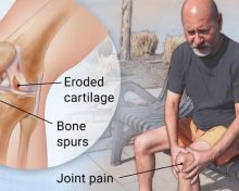 Is Osteoarthritis Normal?