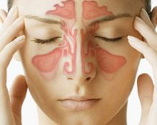 Sinus Congestion by Advanced PMR