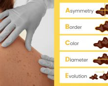 SKIN CANCER by GLENN KOLANSKY, M. D.