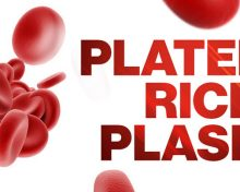 What Is Platelet Rich Plasma Therapy and What Can It Treat?