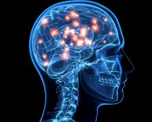 Neurological Disorders: Complex Diseases that Require a Team Approach Tinton Falls NJ