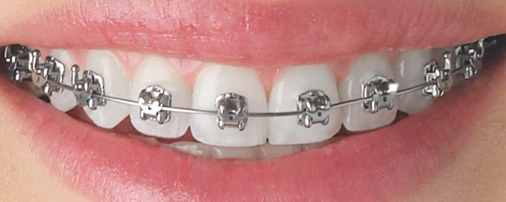WHAT ARE MY OPTIONS FOR BRACES? By Dr. Sezer Olcay